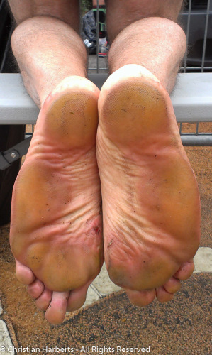 Pieds de marathonien pieds nus ;-)